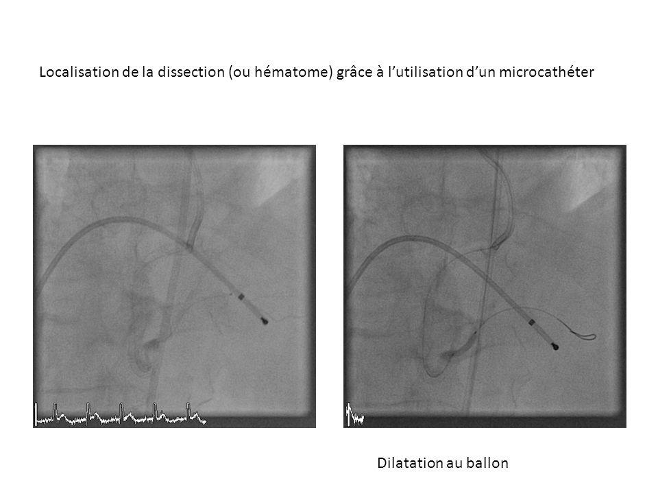 Localisation de la dissection (ou hématome) grâce à l'utilisation d'un microcathéter