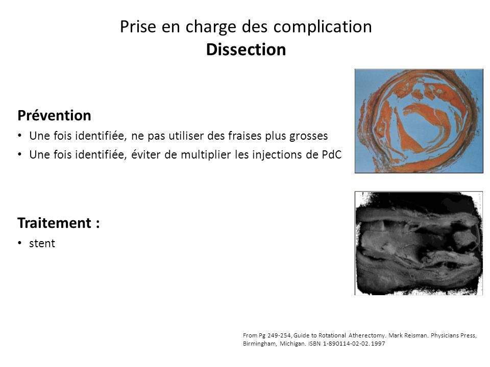 Prise en charge des complication Dissection