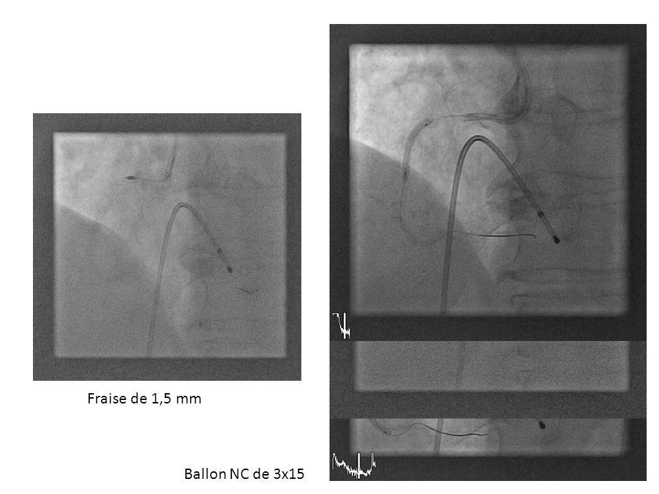 Changement de guide Fraise de 1,5 mm Ballon NC de 3x15