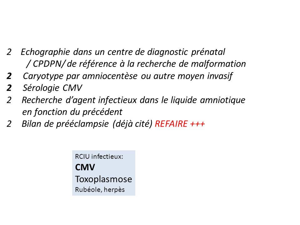 2 Echographie dans un centre de diagnostic prénatal