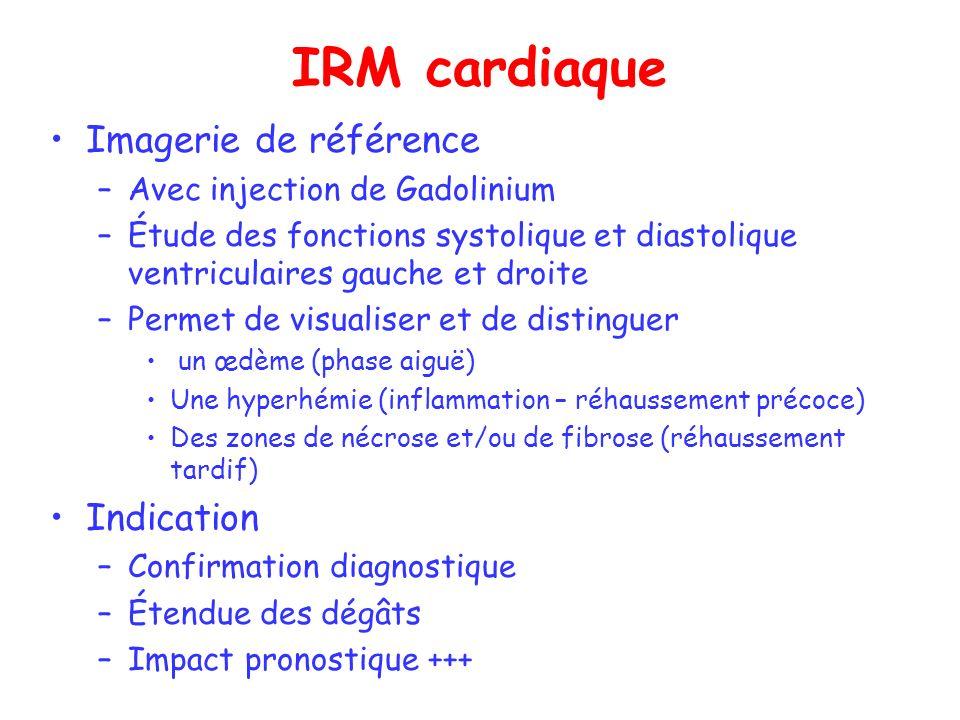 IRM cardiaque Imagerie de référence Indication