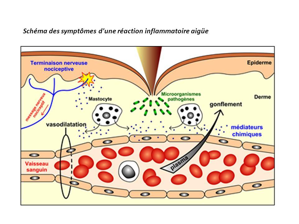 Schéma des symptômes d une réaction inflammatoire aigüe