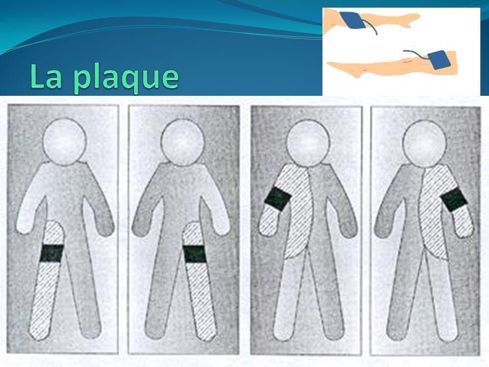 La plaque électrochirurgicale