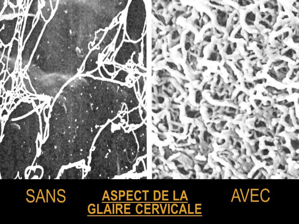 ASPECT DE LA GLAIRE CERVICALE