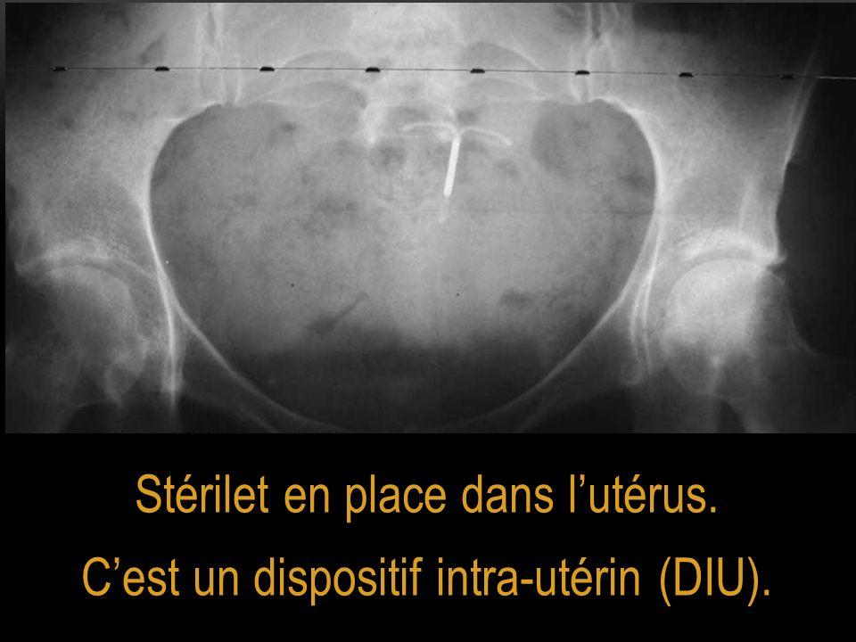Stérilet en place dans l'utérus.