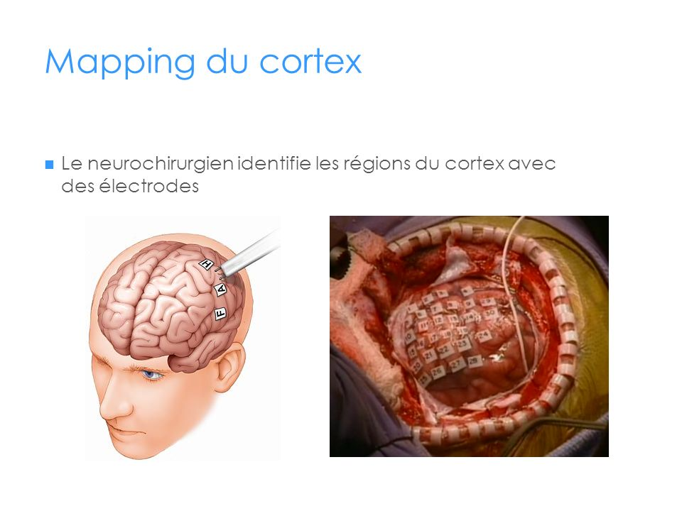 Mapping du cortex Le neurochirurgien identifie les régions du cortex avec des électrodes.