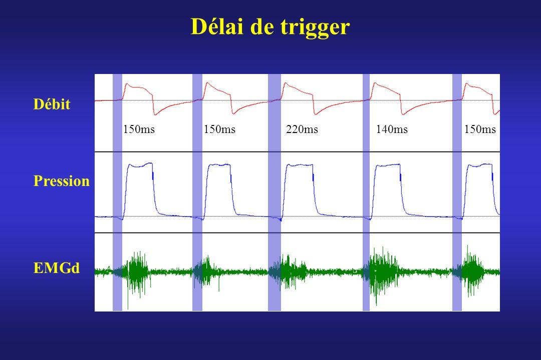 Délai de trigger Débit 150ms 150ms 220ms 140ms 150ms Pression EMGd
