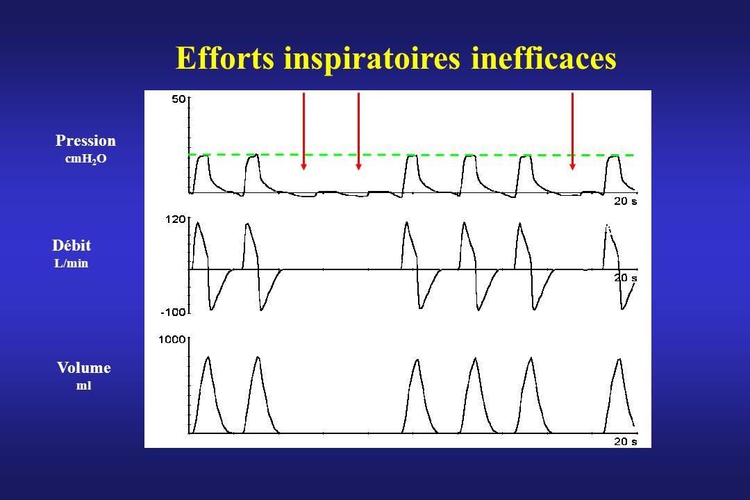 Efforts inspiratoires inefficaces