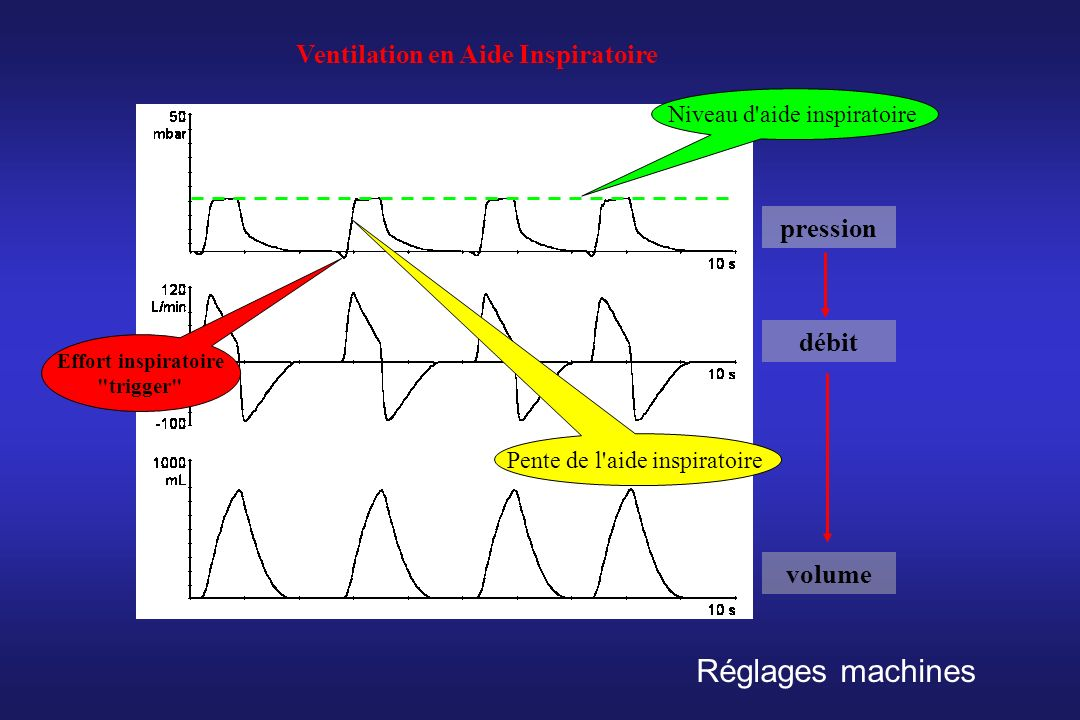 Ventilation en Aide Inspiratoire