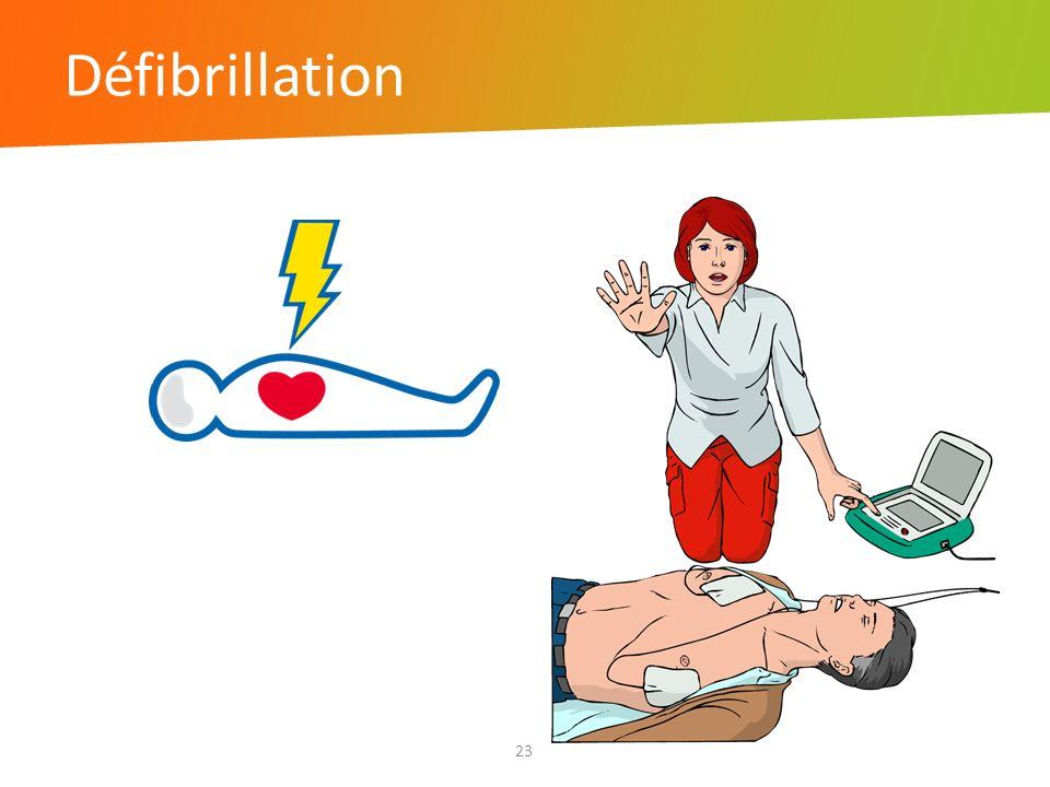 Défibrillation