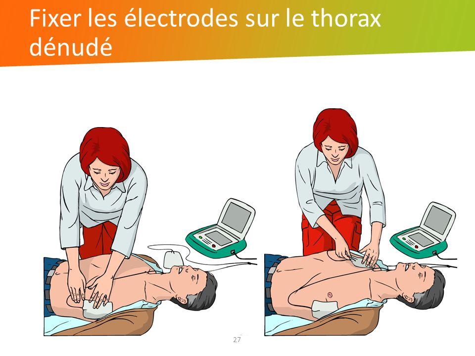 Fixer les électrodes sur le thorax dénudé