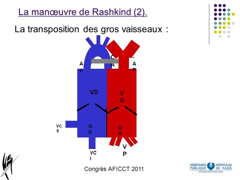 La manœuvre de Rashkind (2).
