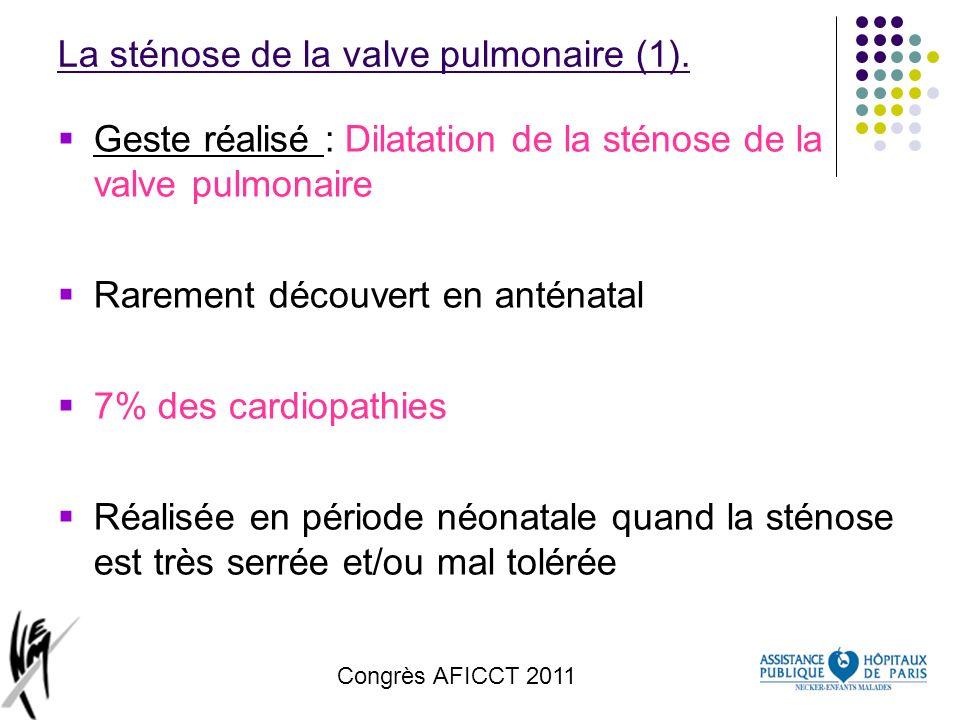 La sténose de la valve pulmonaire (1).