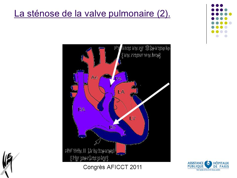 La sténose de la valve pulmonaire (2).