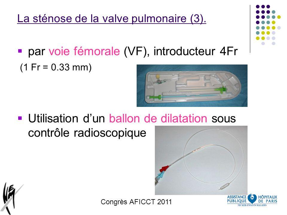 La sténose de la valve pulmonaire (3).