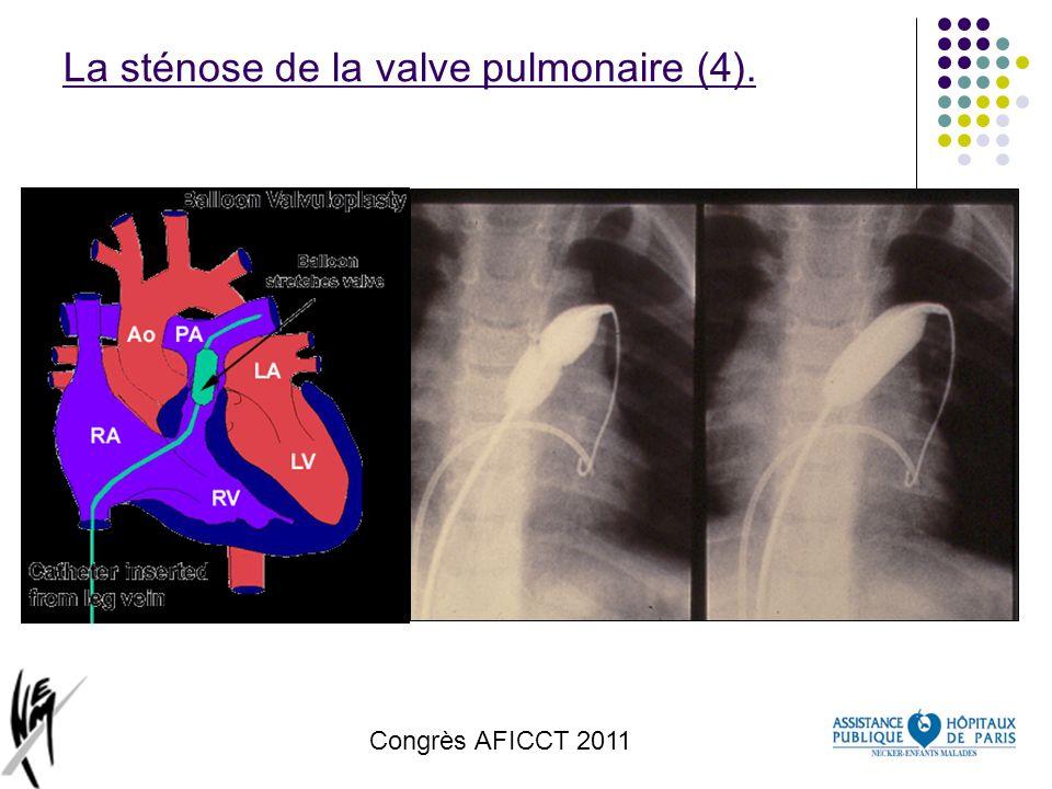 La sténose de la valve pulmonaire (4).