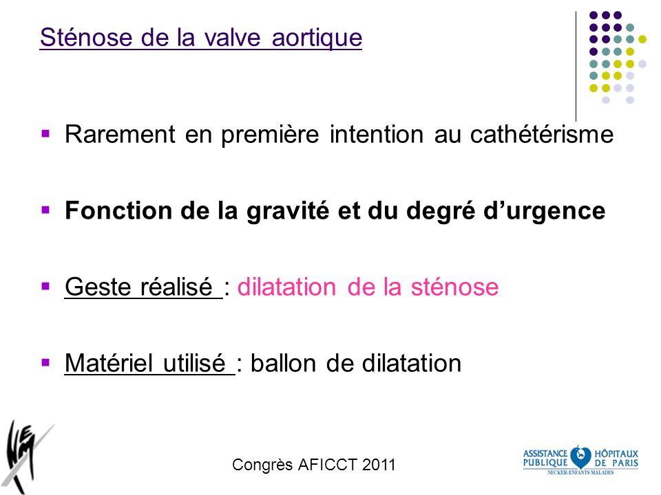 Sténose de la valve aortique