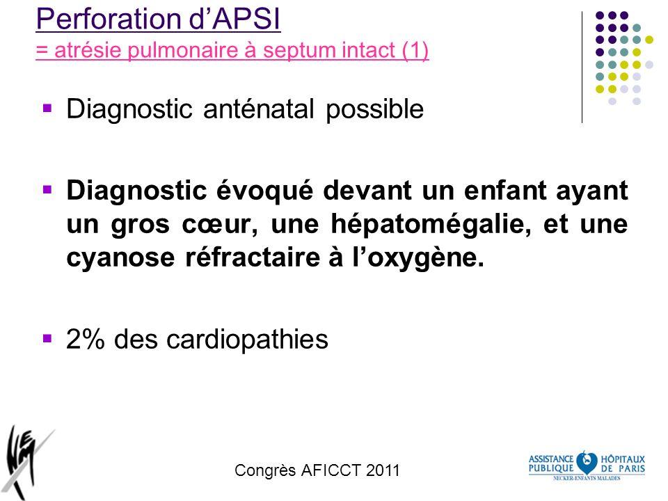 Perforation d'APSI = atrésie pulmonaire à septum intact (1)