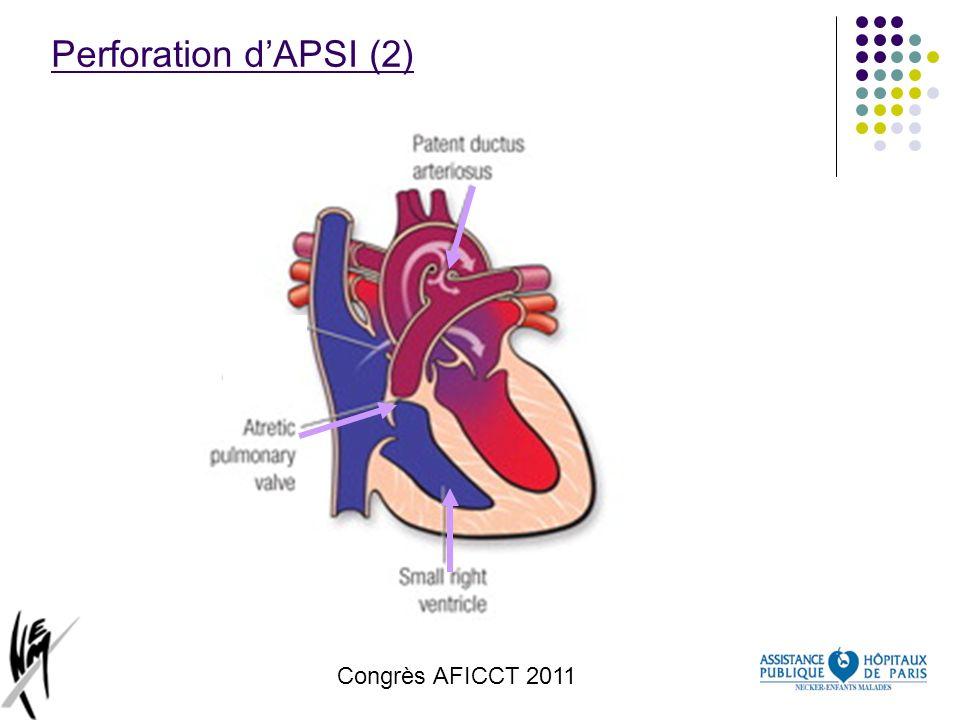 Perforation d'APSI (2) Congrès AFICCT 2011 congrès AFICCT 2011