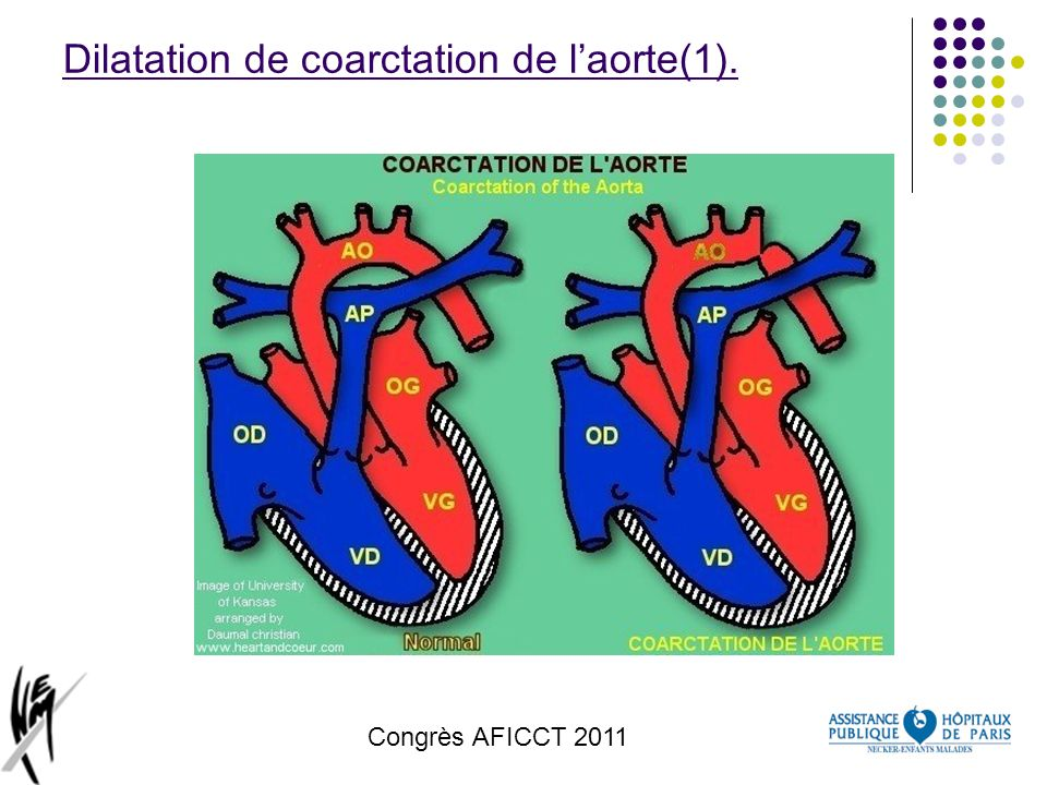 Dilatation de coarctation de l'aorte(1).