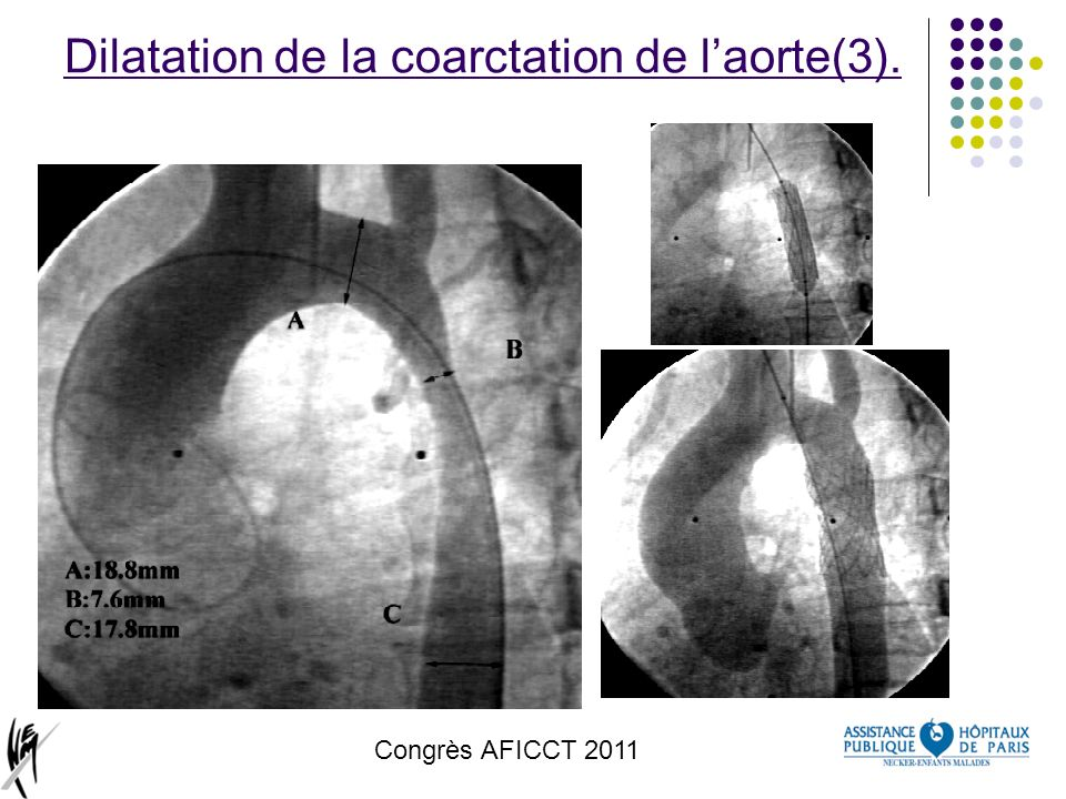 Dilatation de la coarctation de l'aorte(3).
