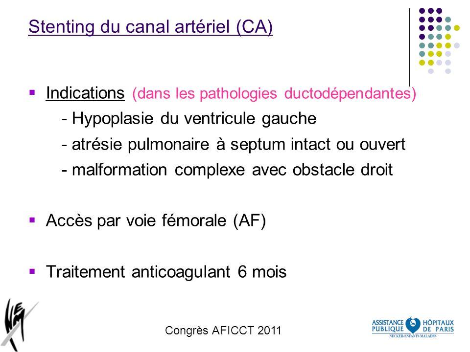 Stenting du canal artériel (CA)