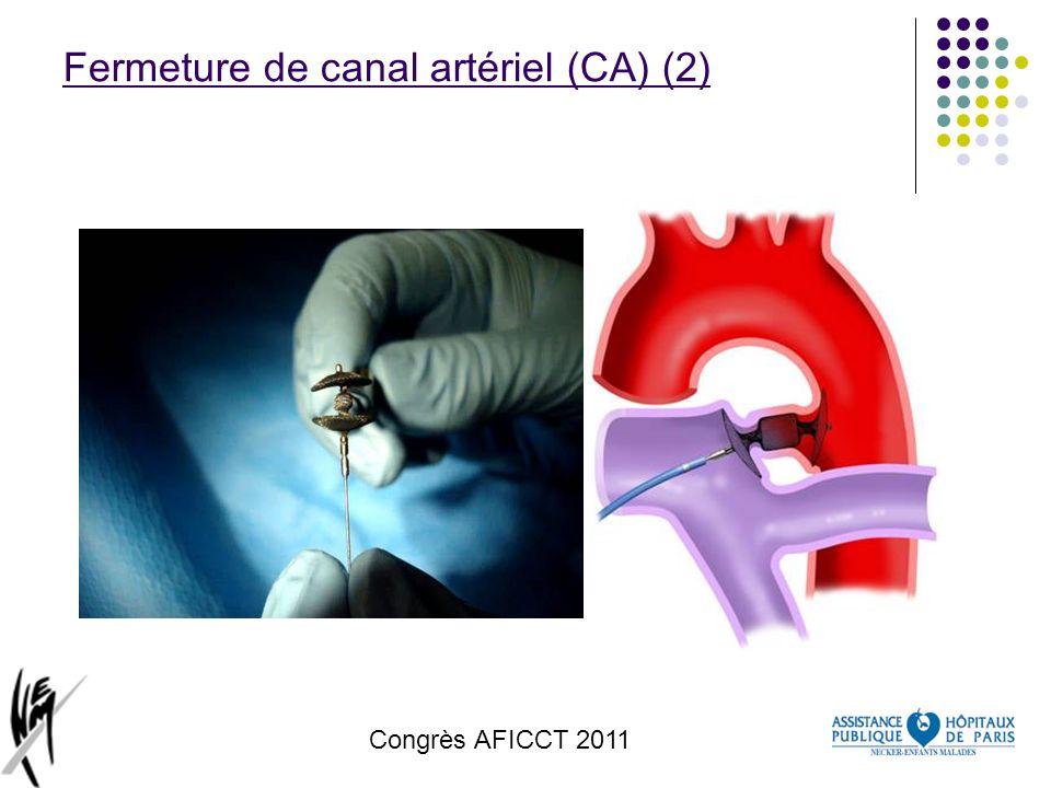 Fermeture de canal artériel (CA) (2)