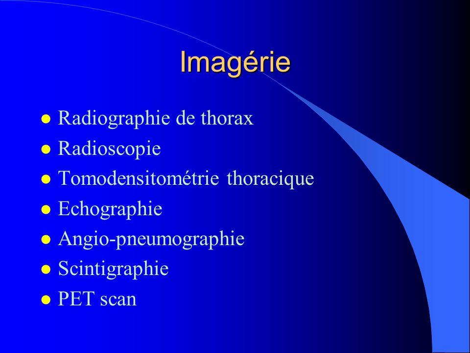 Imagérie Radiographie de thorax Radioscopie