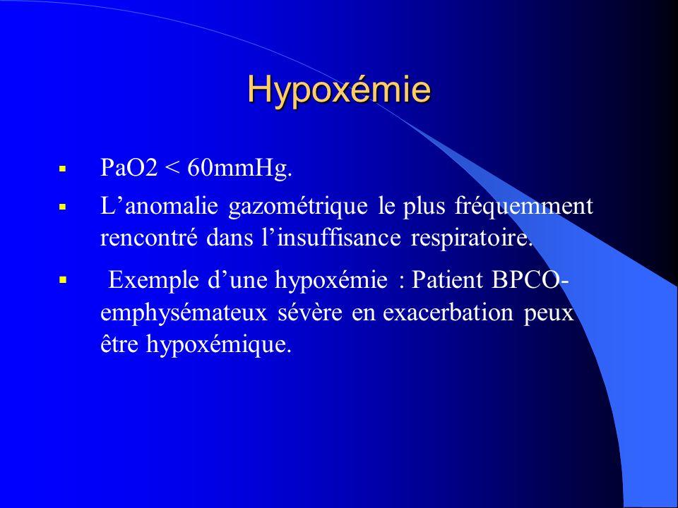 Hypoxémie PaO2 < 60mmHg. L'anomalie gazométrique le plus fréquemment rencontré dans l'insuffisance respiratoire.