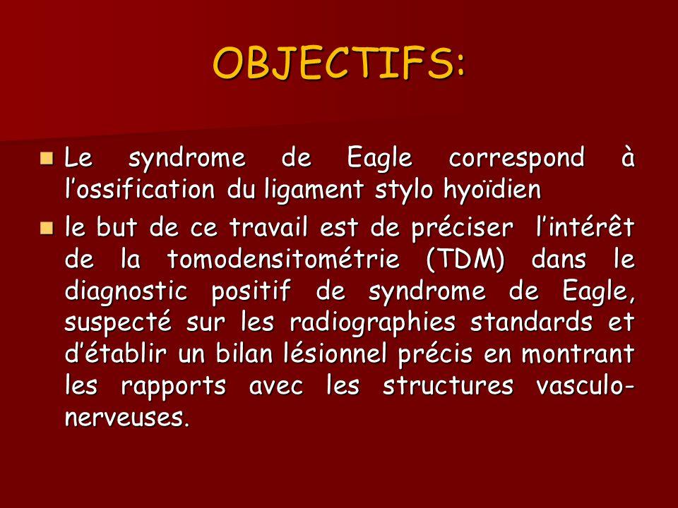 OBJECTIFS: Le syndrome de Eagle correspond à l'ossification du ligament stylo hyoïdien.