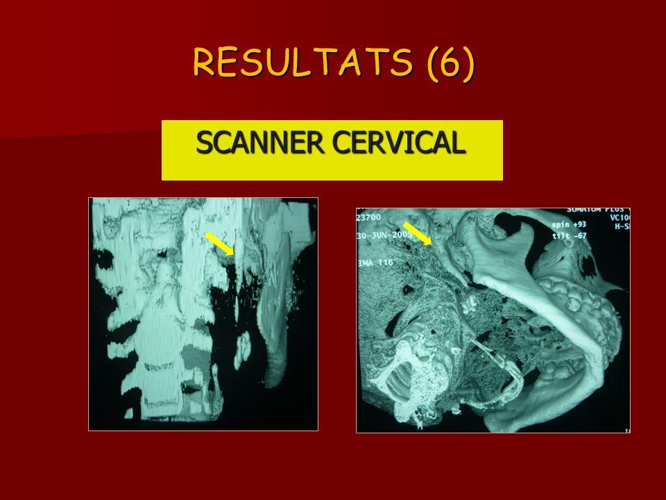RESULTATS (6) SCANNER CERVICAL