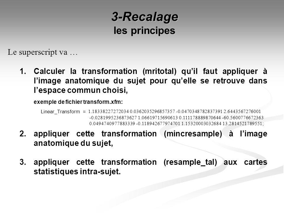 3-Recalage les principes