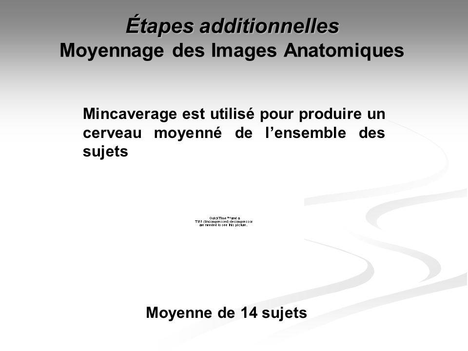 Étapes additionnelles Moyennage des Images Anatomiques