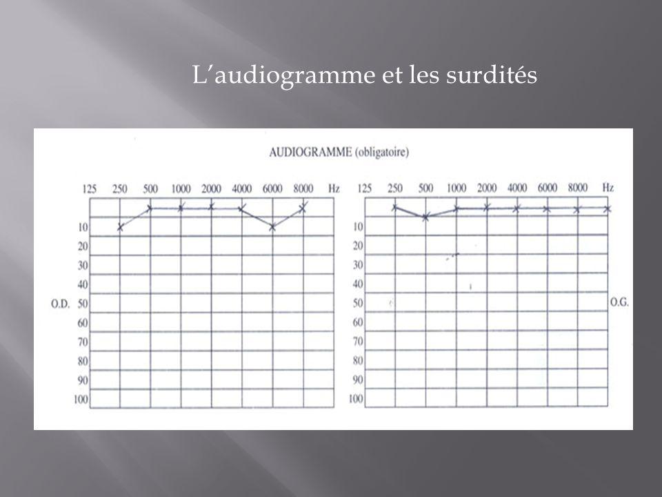 L'audiogramme et les surdités