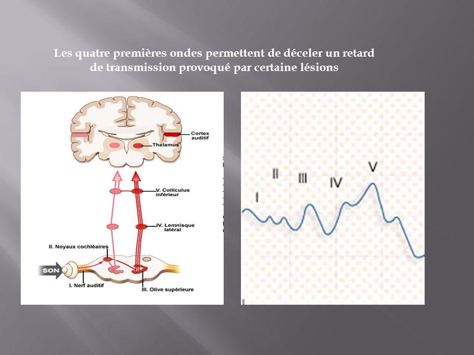 Les quatre premières ondes permettent de déceler un retard de transmission provoqué par certaine lésions