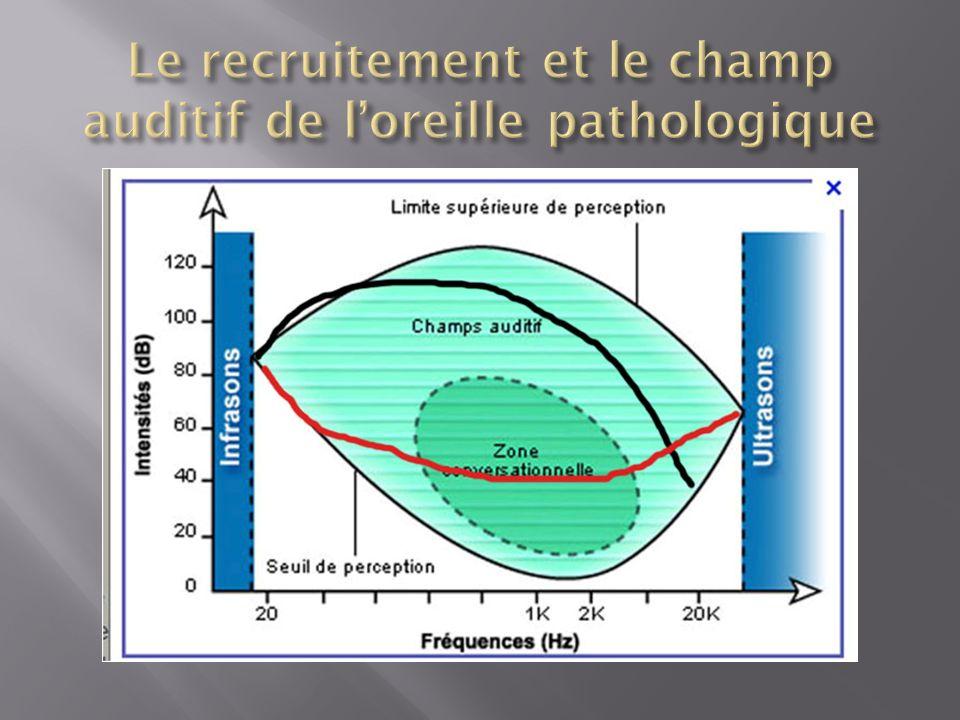 Le recruitement et le champ auditif de l'oreille pathologique