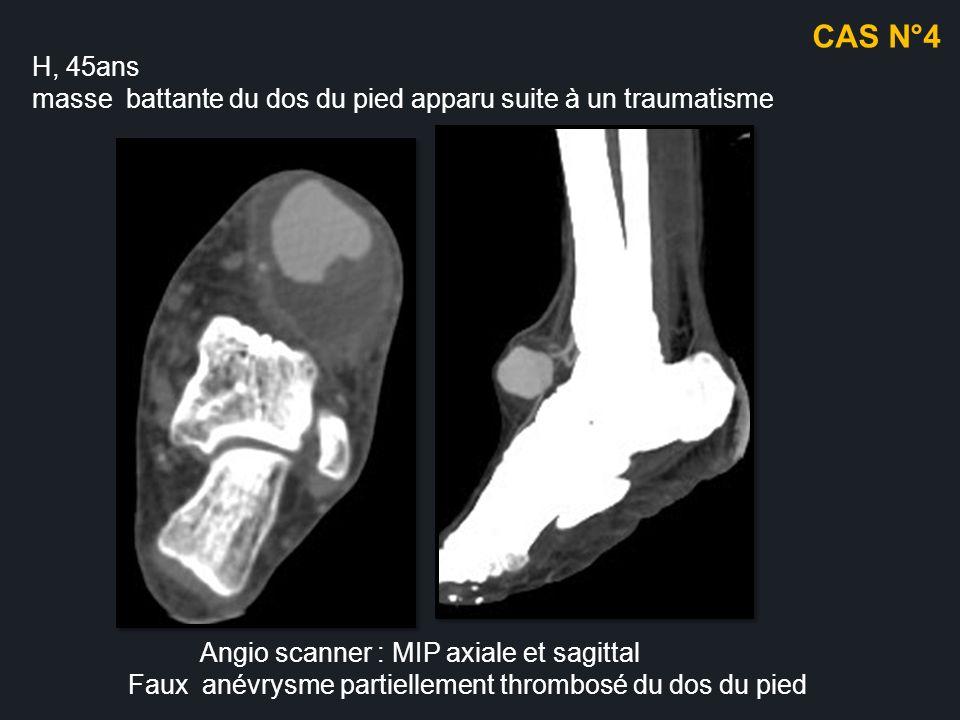 CAS N°4 H, 45ans. masse battante du dos du pied apparu suite à un traumatisme. Angio scanner : MIP axiale et sagittal.