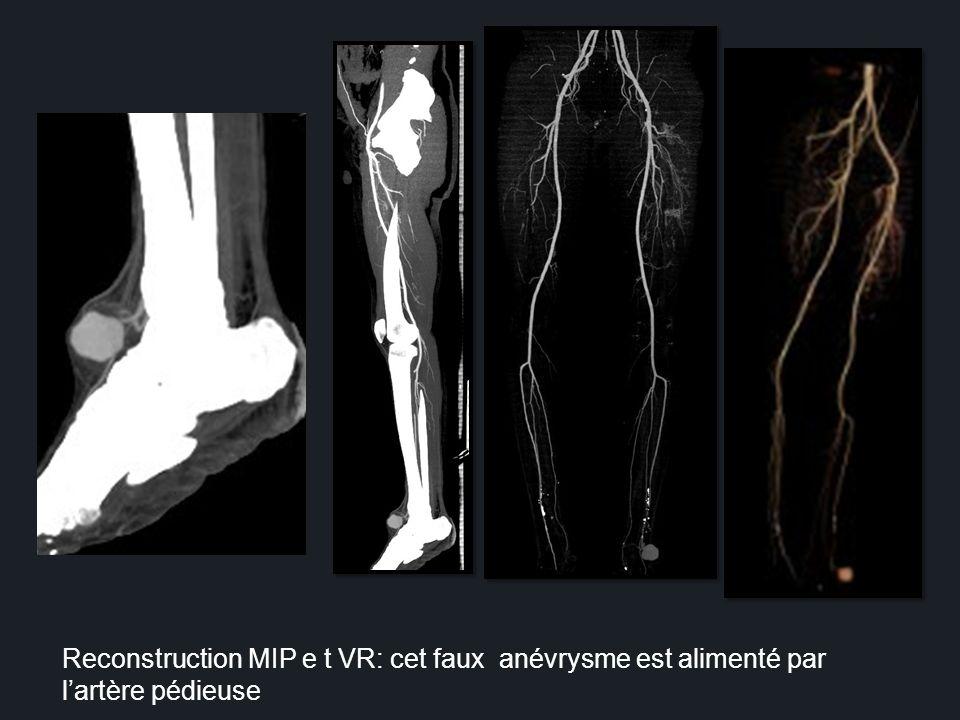 Reconstruction MIP e t VR: cet faux anévrysme est alimenté par l'artère pédieuse
