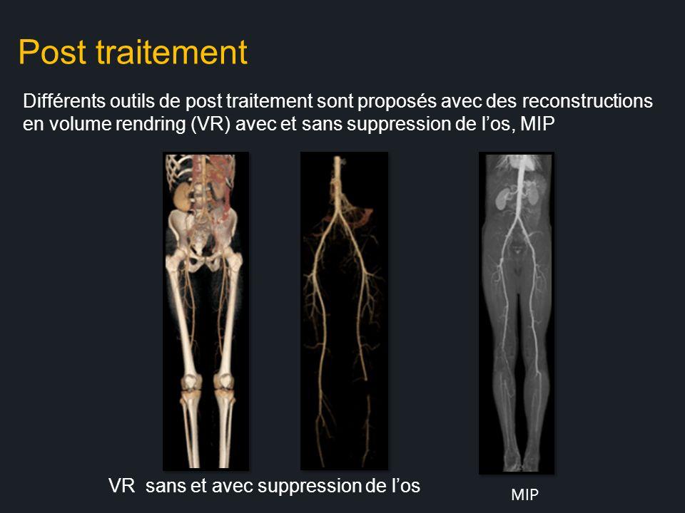 Post traitement Différents outils de post traitement sont proposés avec des reconstructions.