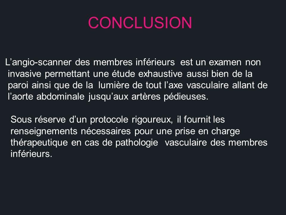 CONCLUSION L'angio-scanner des membres inférieurs est un examen non