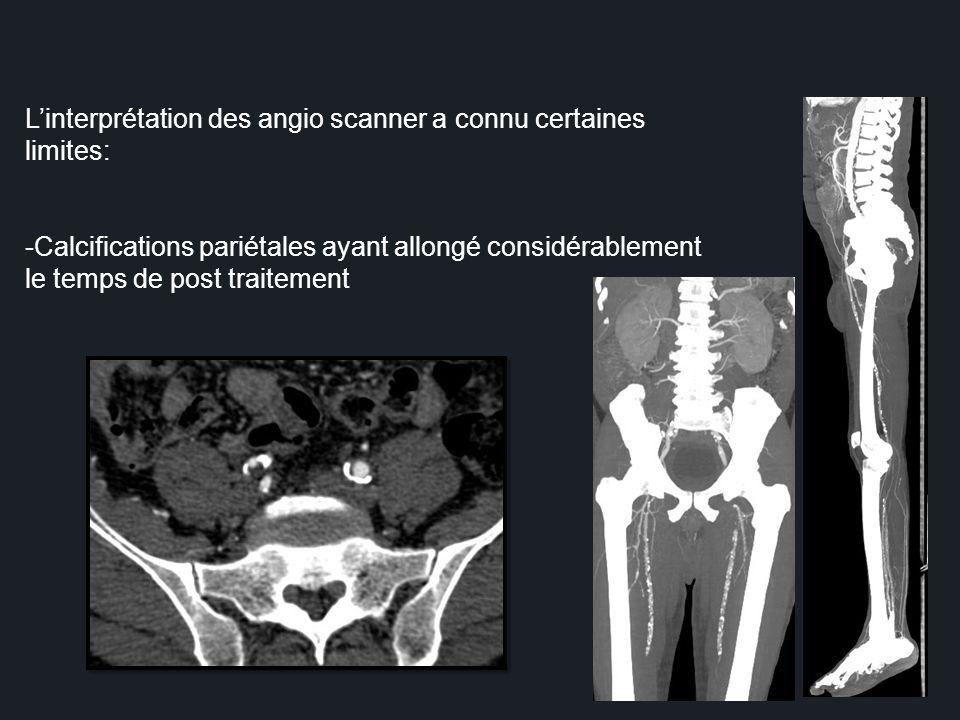 L'interprétation des angio scanner a connu certaines limites: