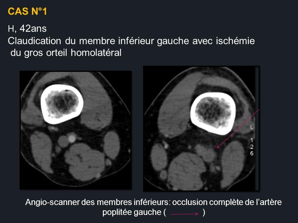 Claudication du membre inférieur gauche avec ischémie