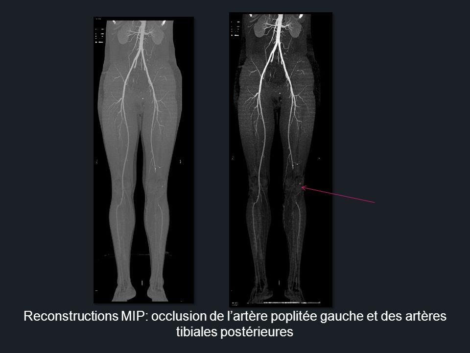 Reconstructions MIP: occlusion de l'artère poplitée gauche et des artères tibiales postérieures