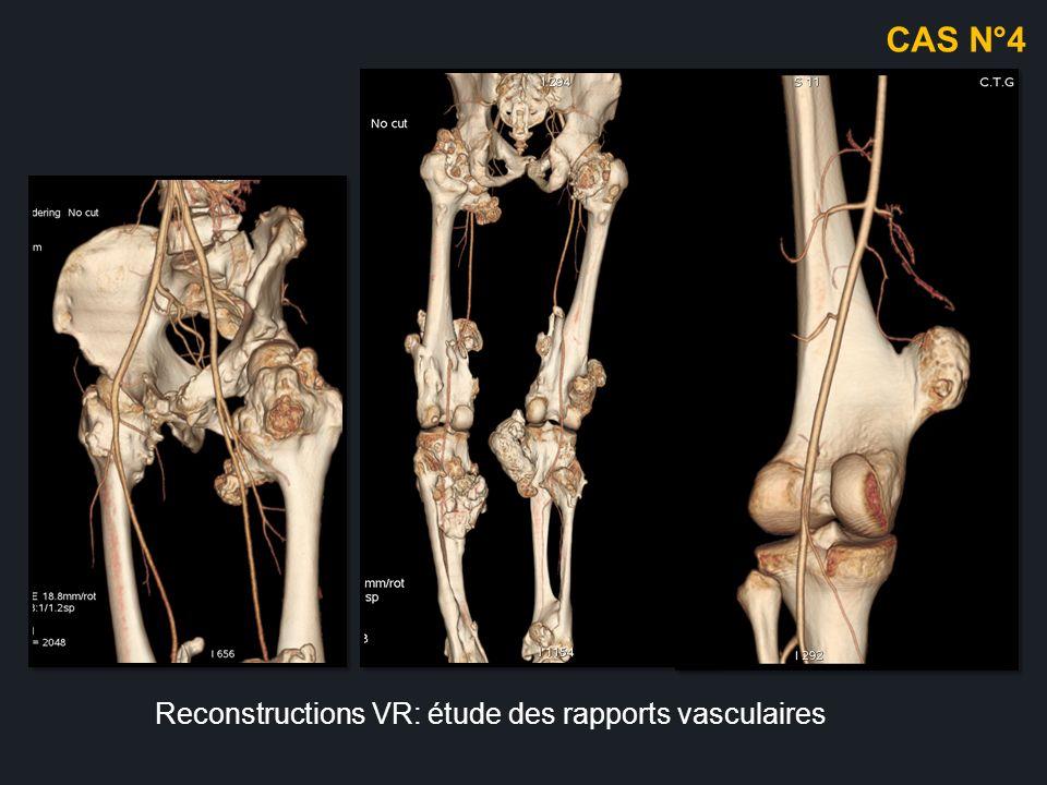 CAS N°4 Reconstructions VR: étude des rapports vasculaires