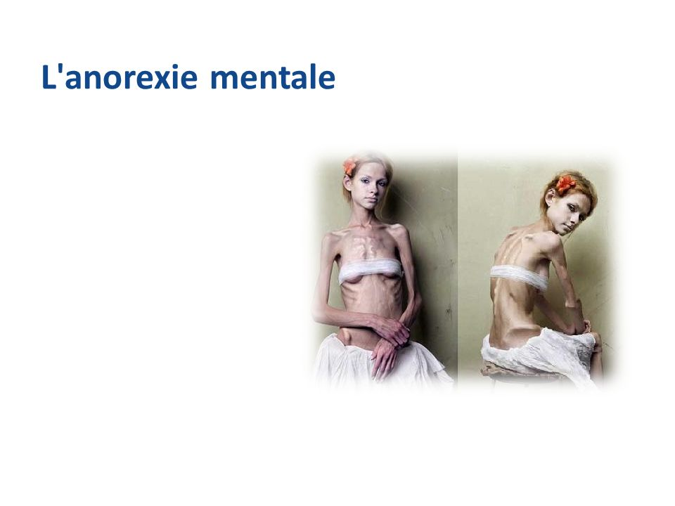 L anorexie mentale