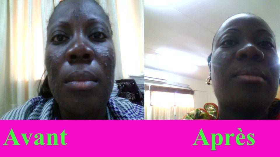 Avant Après