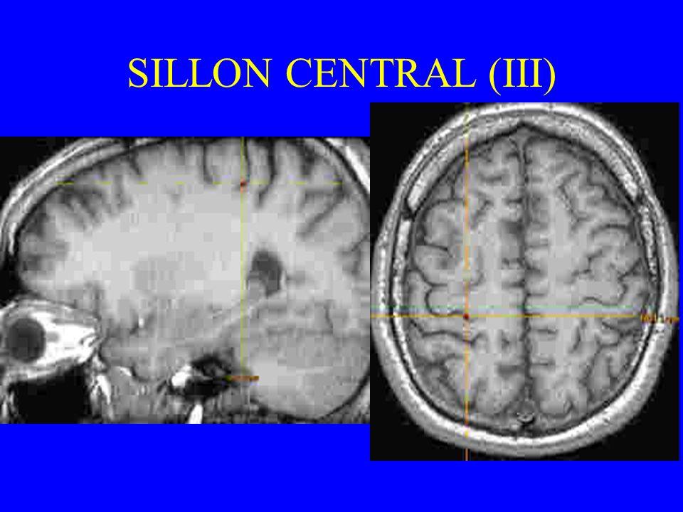 SILLON CENTRAL (III)