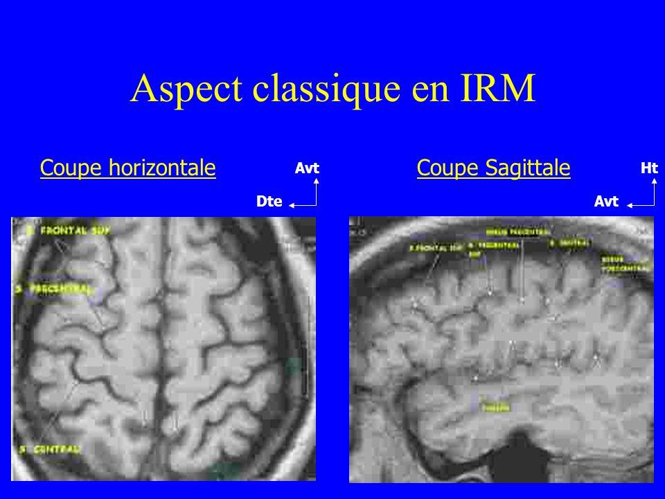 Aspect classique en IRM