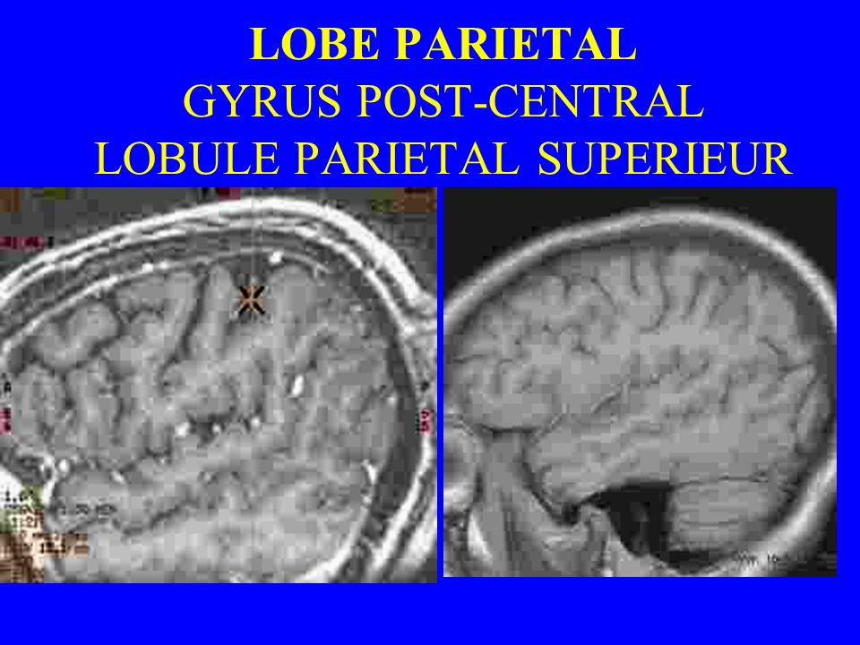 LOBE PARIETAL GYRUS POST-CENTRAL LOBULE PARIETAL SUPERIEUR