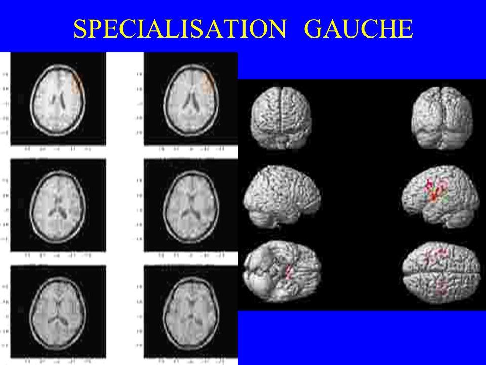 SPECIALISATION GAUCHE
